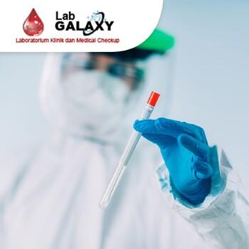 Rapid Swab Test Antigen Covid 19 di Laboratorium Klinik Galaxy, Bekasi