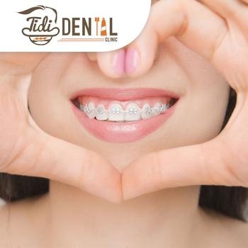 Ortho konvensional (Kawat Gigi) di Tidi Dental Clinic, Jakarta Selatan