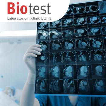 medical check up untuk pemeriksaan kesehatan di Lab Klinik Biotest