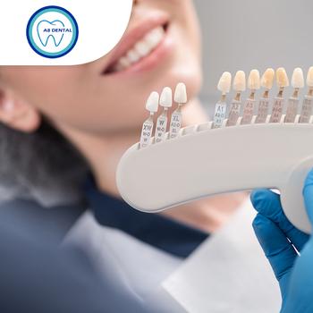 Veneer Direct Composite 1 Gigi & Dental Check Up di A8 Dental