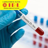 Cek status Vitamin D 25-OH - Laboratorium Klinik IBL Semarang