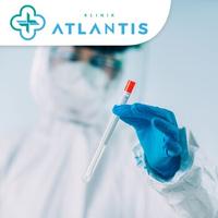 Rapid Swab Test Antigen Covid-19 -  Klinik Atlantis