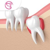 Operasi Gigi Bungsu - Laura-Sum Dental Care (LDC) Clinic