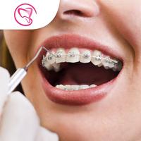 Mini Metal Braces Atas & Bawah - Laura-Sum Dental Care (LDC) Clinic