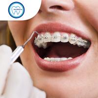 Orthodontik Kawat Gigi Metal Braces USA - A8 Dental