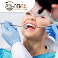 Scaling (Pembersihan Karang Gigi) - Tidi Dental Clinic