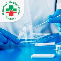 Rapid Swab Antigen Test COVID-19 - Klinik Marrakash Medical Center