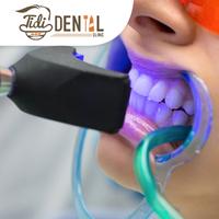 Bleaching Gigi - Tidi Dental Clinic