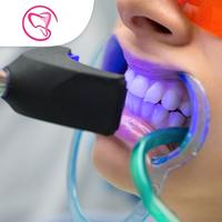 Bleaching Gigi - Laura-Sum Dental Care (LDC) Clinic