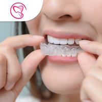 Clear Retainer Atas & Bawah - Laura-Sum Dental Care (LDC) Clinic