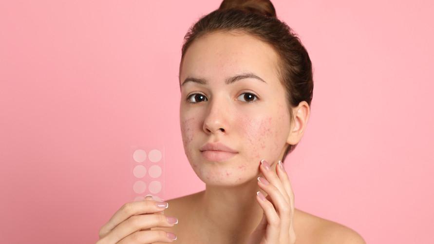 Acne patch terbaik mampu menyerap nanah jerawat